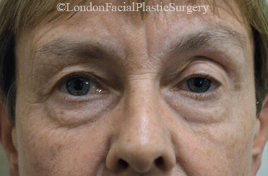 Eyelid Surgery (Blepharoplasty) Before 51