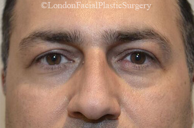 Eyelid Surgery (Blepharoplasty) After 52