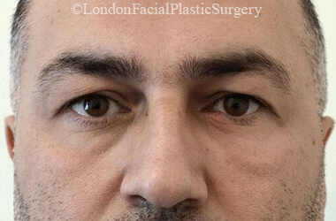 Eyelid Surgery (Blepharoplasty) Before 52