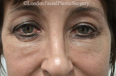 Eyelid Surgery (Blepharoplasty) Before 54