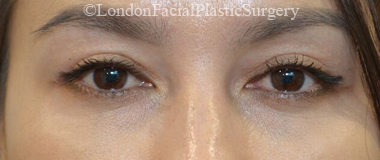 Eyelid Surgery (Blepharoplasty) After 55