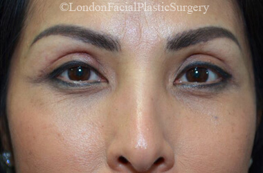 Eyelid Surgery (Blepharoplasty) After 56