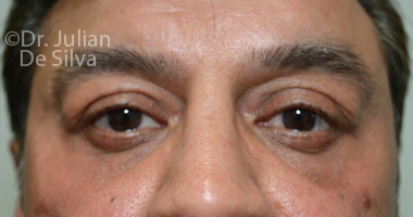 Eyelid Surgery (Blepharoplasty) After 58