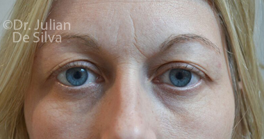 Eyelid Surgery (Blepharoplasty) Before 59