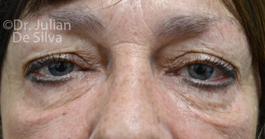 Eyelid Surgery (Blepharoplasty) Before 60