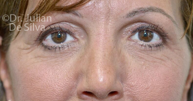 Eyelid Surgery (Blepharoplasty) After 62