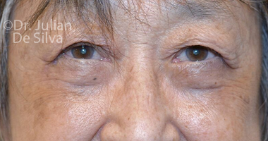 Eyelid Surgery (Blepharoplasty) After 63