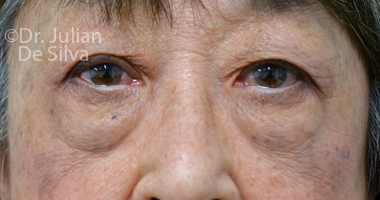 Eyelid Surgery (Blepharoplasty) Before 63