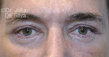 Eyelid Surgery (Blepharoplasty) After 64