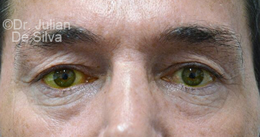 Eyelid Surgery (Blepharoplasty) Before 64