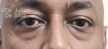 Eyelid Surgery (Blepharoplasty) Before 66