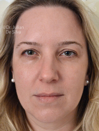 Eyelid Surgery (Blepharoplasty) Before 69