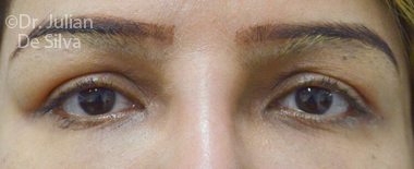 Eyelid Surgery (Blepharoplasty) Before 71