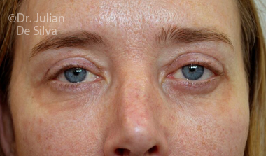 Eyelid Surgery (Blepharoplasty) After 72