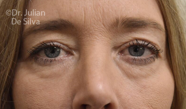 Eyelid Surgery (Blepharoplasty) Before 72