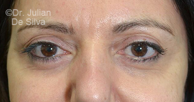 Eyelid Surgery (Blepharoplasty) After 74