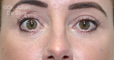 Eyelid Surgery (Blepharoplasty) After 75