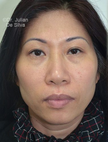 Eyelid Surgery (Blepharoplasty) Before 76