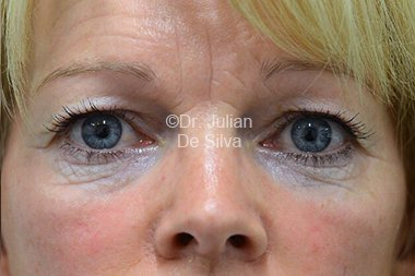 Eyelid Surgery (Blepharoplasty) Before 78