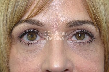 Eyelid Surgery (Blepharoplasty) After 80