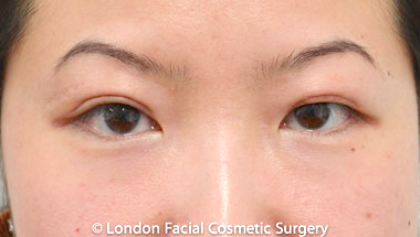 Female Blepharoplasty After 7