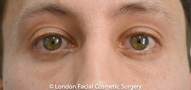 Male Blepharoplasty After 2