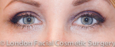 Female Blepharoplasty After 2