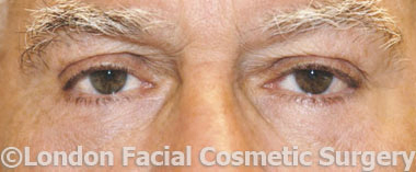 Male Blepharoplasty After 1