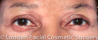 Female Blepharoplasty After 4