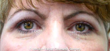 Female Blepharoplasty After 5
