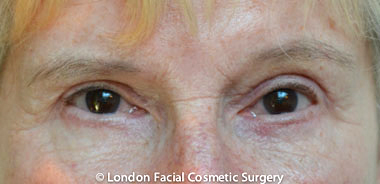 Female Blepharoplasty After 6