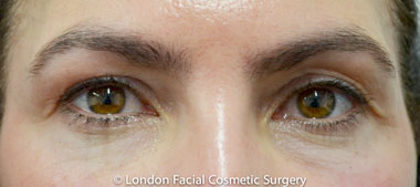 Eyelid Surgery (Blepharoplasty) Before 9