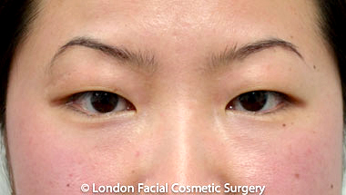 Female Blepharoplasty Before 7