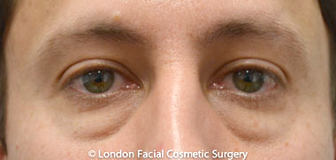 Male Blepharoplasty Before 2