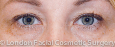 Female Blepharoplasty Before 2