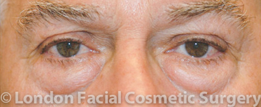 Male Blepharoplasty Before 1