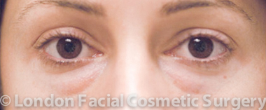 Female Blepharoplasty Before 3