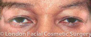 Female Blepharoplasty Before 4