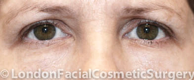 Eyelid Surgery (Blepharoplasty) Before 6