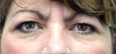 Female Blepharoplasty Before 5