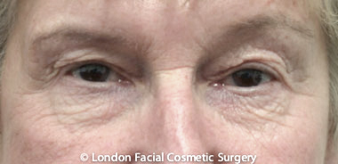 Female Blepharoplasty Before 6