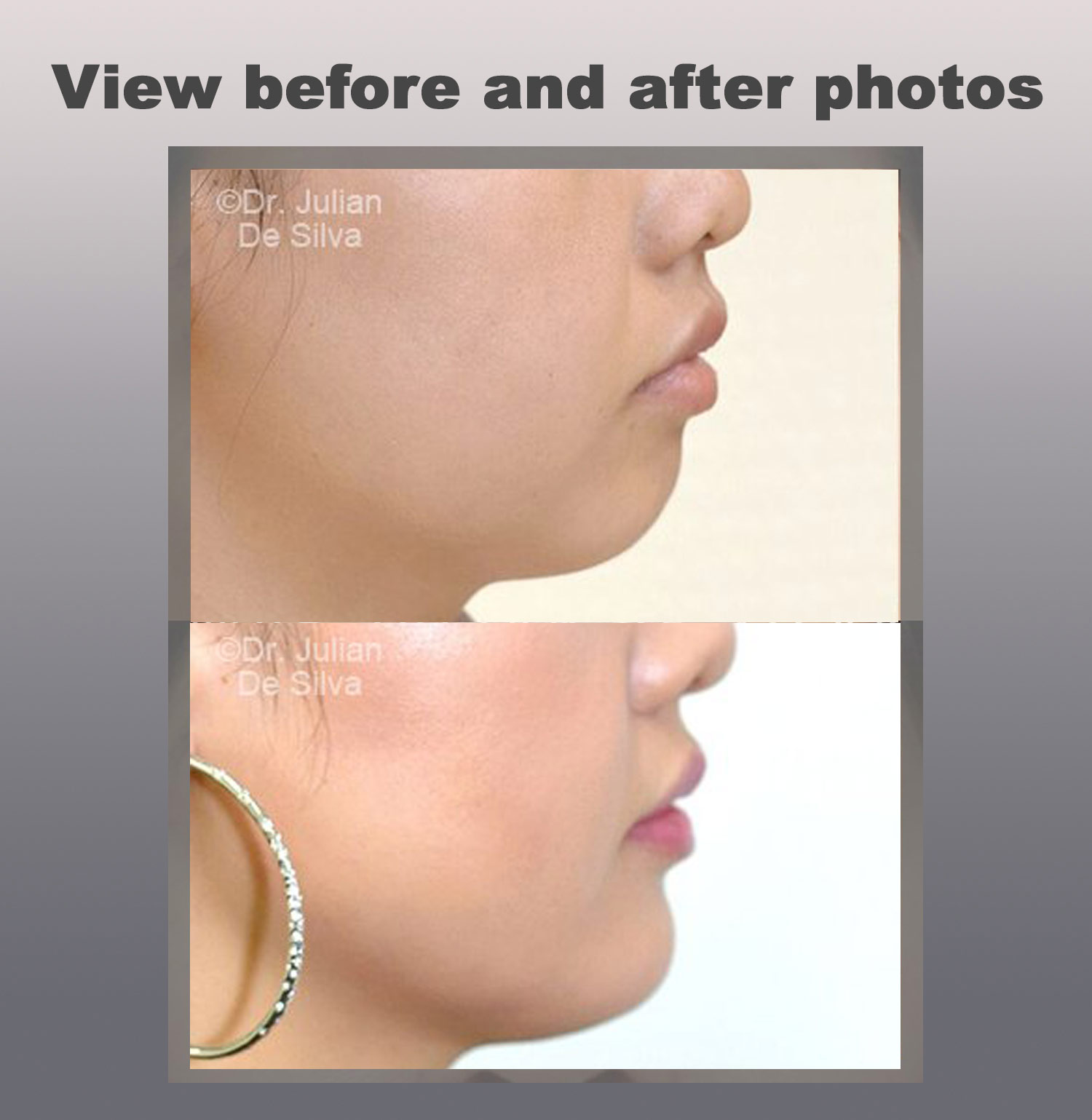 View Before and After Chin Implants photos