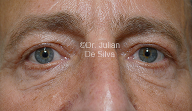 Eyelid Surgery (Blepharoplasty) After 29