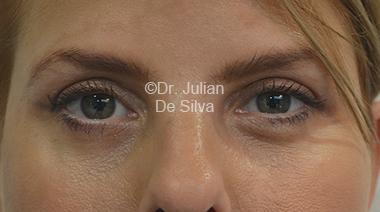 Eyelid Surgery (Blepharoplasty) After 30