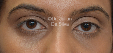 Eyelid Surgery (Blepharoplasty) After 31