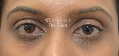 Eyelid Surgery (Blepharoplasty) Before 31