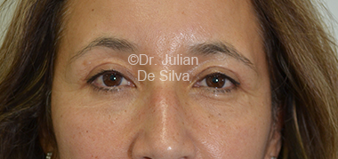 Eyelid Surgery (Blepharoplasty) After 32