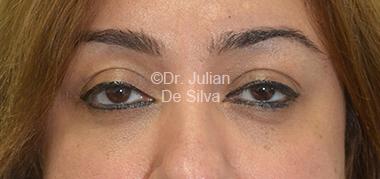 Eyelid Surgery (Blepharoplasty) After 33