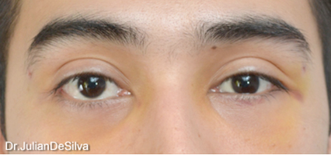 Male Blepharoplasty After 4