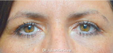 Female Blepharoplasty After 8